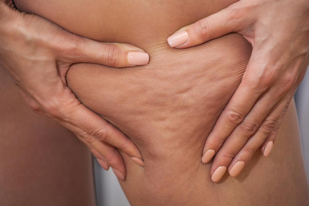 Оцтові обгортання ефективно борються з в'ялістю шкіри, целюлітом, розтяжками і зміцнюють стінки судин