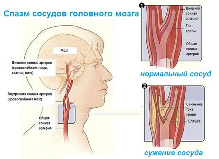Порушення в роботі судин головного мозку та шиї
